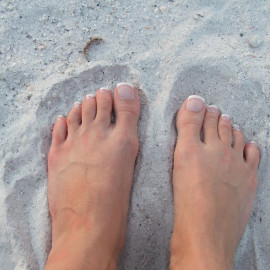 Metatarsalgia: Yes, I Had Pain Under My Toes!