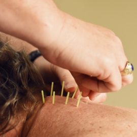 Tools in the Toolbox: Dry Needling